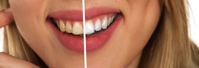 Czy wiesz już wszystko o higienie jamy ustnej?